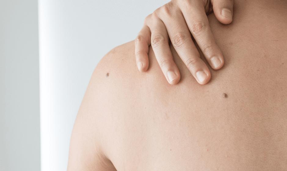moles on woman's back